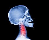 insurance claim evidence for whiplash damage