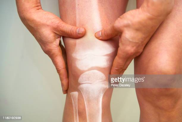 x-ray of knee - osteoarthritis and rheumatoid arthritis - genou photos et images de collection