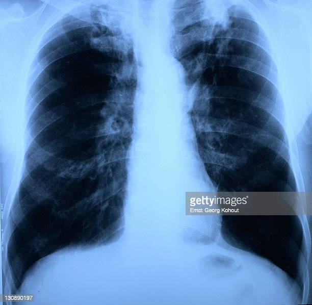 x-ray of lungs and thorax with upper lobes - tuberculosis on both sides - mycobacterium tuberculosis bacteria stock photos and pictures