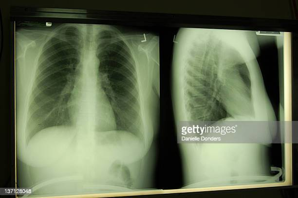 X-ray of lungs