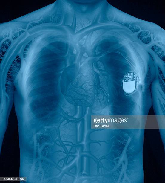 X-ray of man's chest and pacemaker, mid section (Digital Composite)