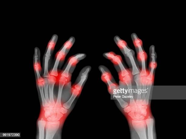 x-ray of painful hands - ankylosing spondylitis stock photos and pictures