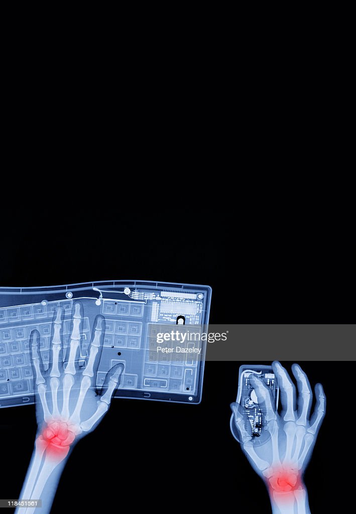 X-ray of repetitive strain injury : Stock Photo