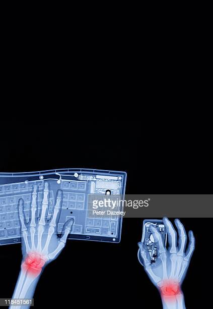 x-ray of repetitive strain injury - ankylosing spondylitis stock photos and pictures