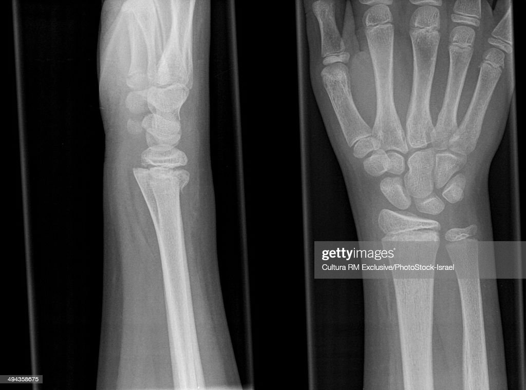 Xray Of Right Hand With Fracture Of Distal Radius 13 Year Old Male ...
