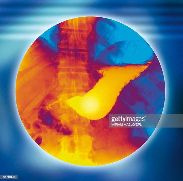 x-ray of stomach - human stomach internal organ stock photos and pictures