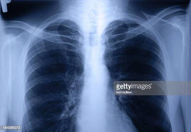 x 線の胸 - x ray image ストックフォトと画像