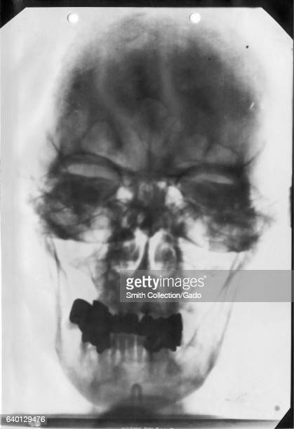 Xray of the head of Adolf Hitler 1930 Courtesy National Library of Medicine