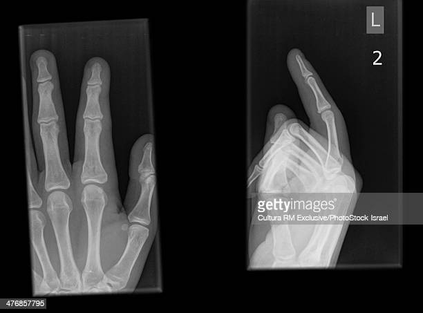 X-ray of the index finger there is a fracture of the proximally Phalanx bone of a 15 year old male patient
