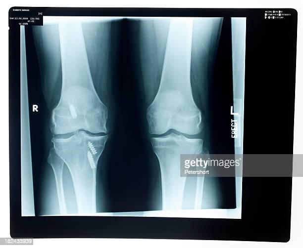 x-ray of the knee - human knee stock pictures, royalty-free photos & images