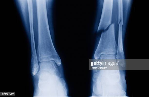 x-ray of Tibia and Fibula fracture.