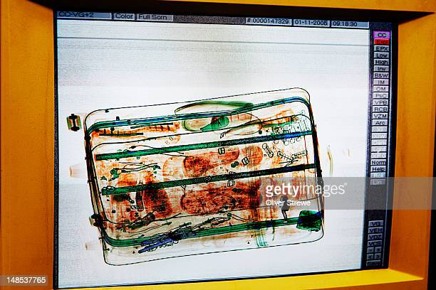 X-ray of tourist's bag at Sydney airport.