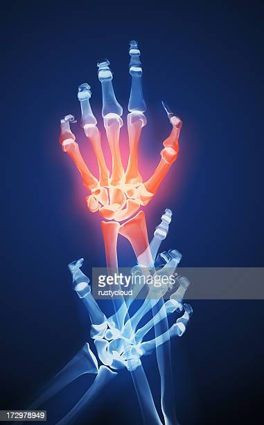 X-ray of two hands and one is red to show the pain