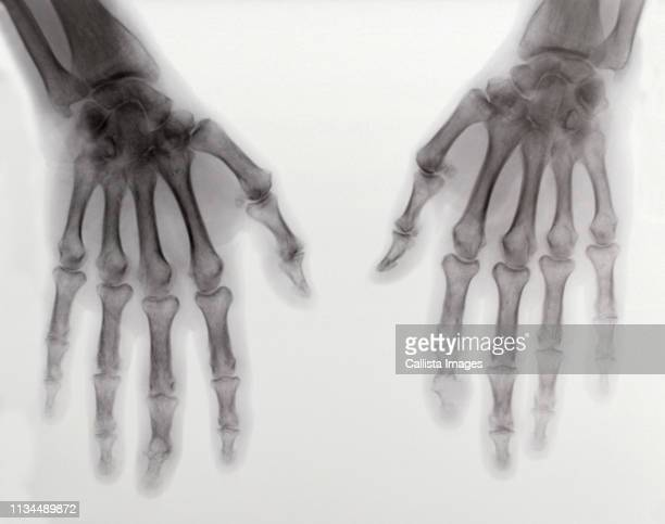 x-ray of two hands showing rheumatoid arthritis - rheumatoid arthritis stock pictures, royalty-free photos & images