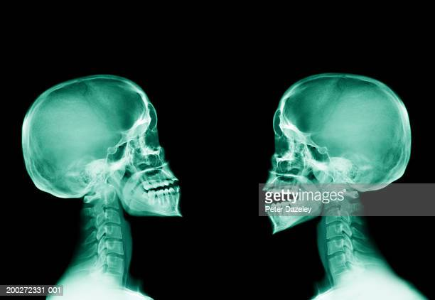 x-ray of two human skulls, side view - human skull stock pictures, royalty-free photos & images