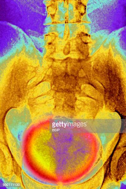 Xray of urinary schistosomiasis Frontal pelvic xray