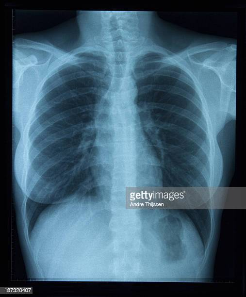 x-ray of woman's chest