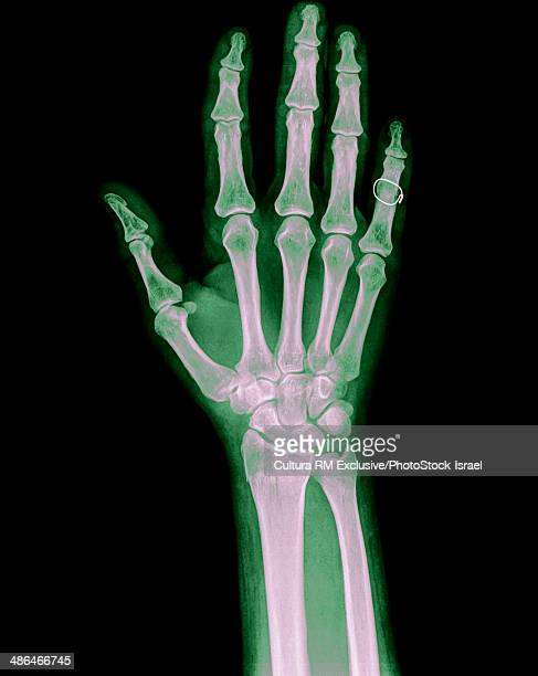 broken hand x ray stock photos and pictures getty images