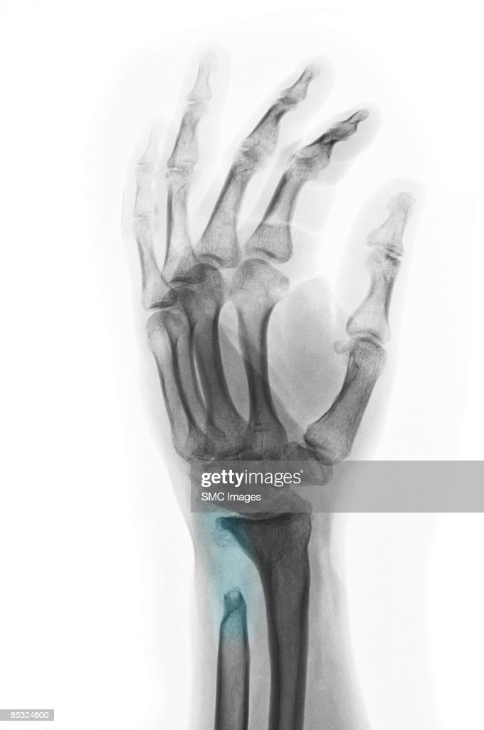 Xray Of Wrist With Osteomyelitis And Old Fracture Stock ...