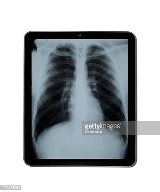 X -Ray on タブレット PC