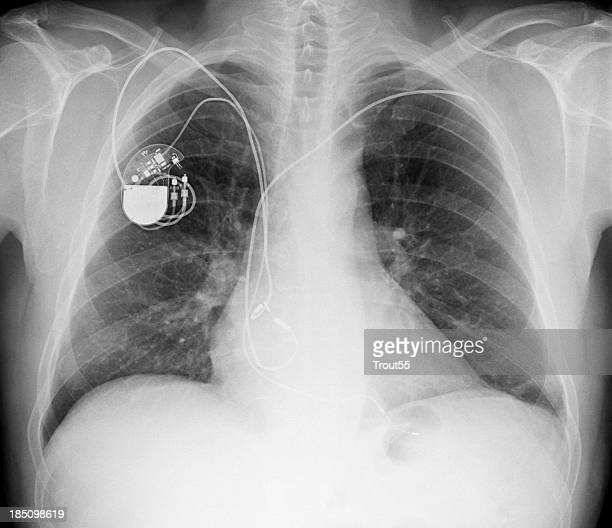 x-ray picture - chest with pacemaker - pacemaker stock pictures, royalty-free photos & images