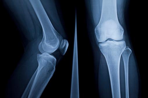 X-Ray 183864562