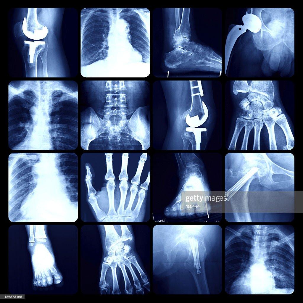 x-ray : Stock Photo