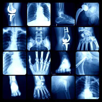 x-ray 186873165