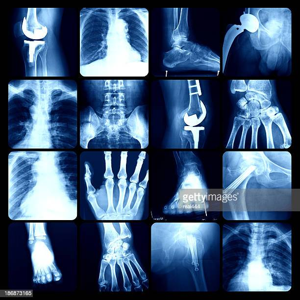 x-ray - bones stock photos and pictures
