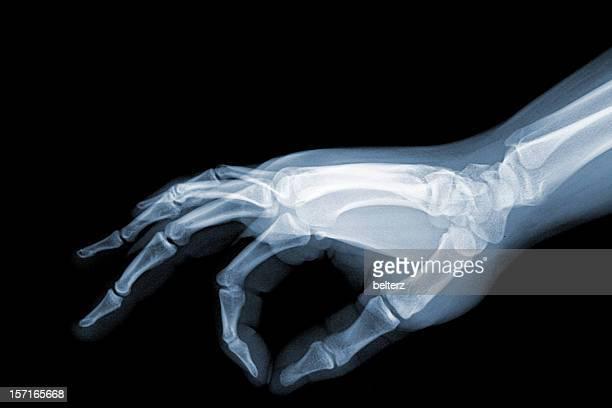 x-ray pinch