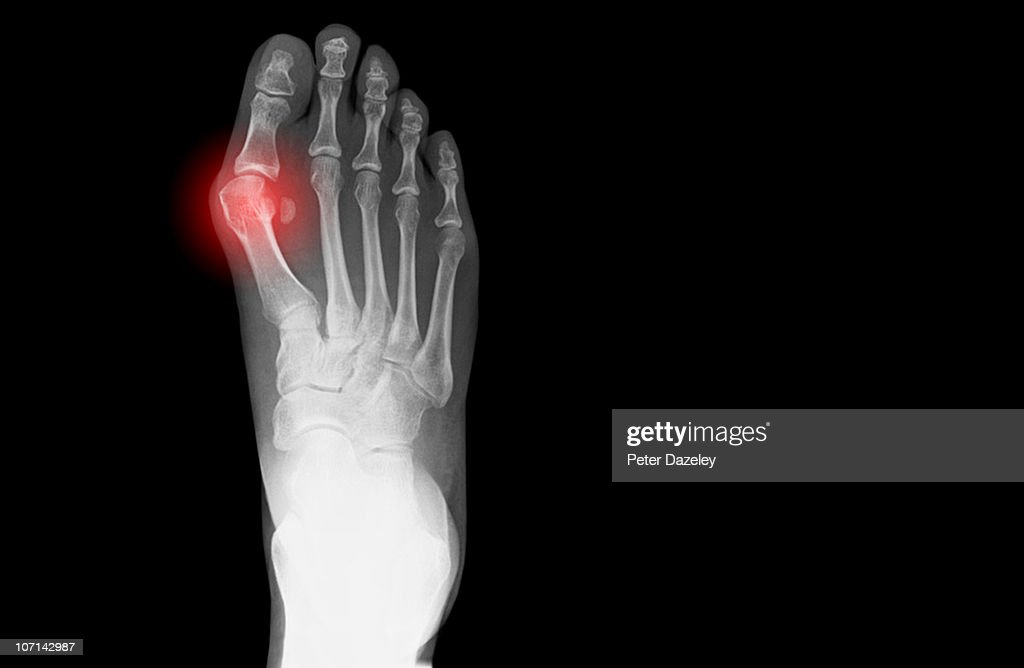 Xray Showing Bunion On Human Foot Stock Photo   Getty Images
