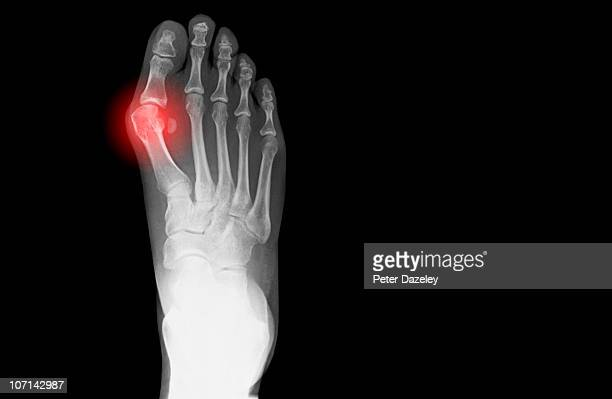 x-ray showing bunion on human foot - hallux valgus photos et images de collection
