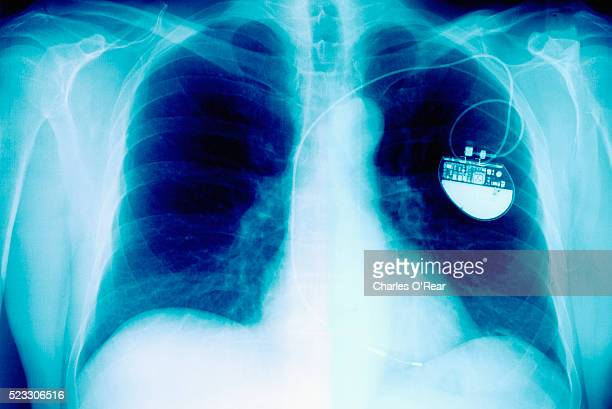 X-Ray Showing Pacemaker