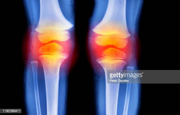 x-ray showing sports injury to knees - rheumatoid arthritis stock pictures, royalty-free photos & images