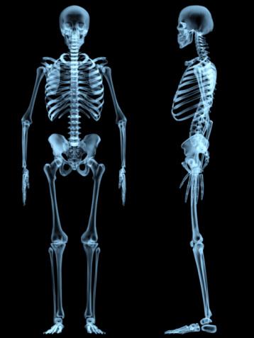 x-ray skeleton 92883350