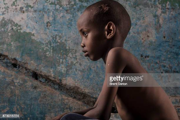 Yahya Jimale Kheyliye was one of nine children who were hit by an AlShabab mortar that was fired at the presidential compound on the day the new...