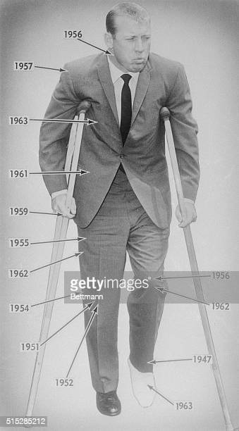Yankee slugger Mickey Mantle who has been plagued with a series of injuries during his baseball career is shown on crutches here after the latest...