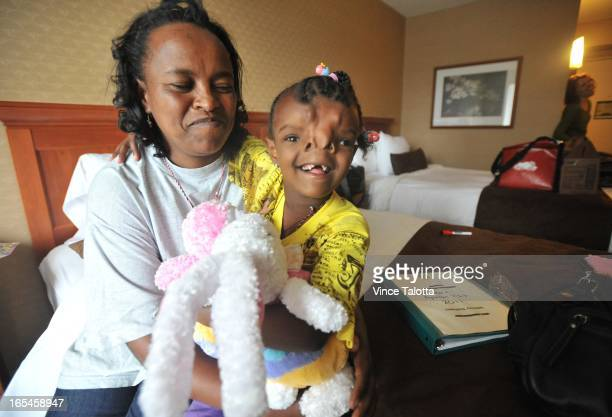 Yeabsra Gebeyhu Hailmarim and her mom Aynalem Adugna arrive from Ethiopia for facial reconstruction surgery for a severe cleft palate that divides...