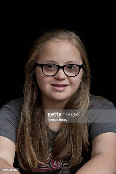 14 year old girl with Down syndrome