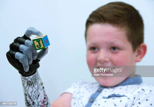 9 year old Josh Cathcart from Dalgety Bay in Fife during the final fitting for his new bionic hand at Touch Bionics' headquarters on August 21 2015...