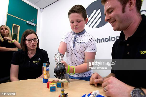 9 year old Josh Cathcart from Dalgety Bay in Fife with Prosthetist Alison Goodwin and orthopaedic Technician Lewis MacKay during the final fitting...