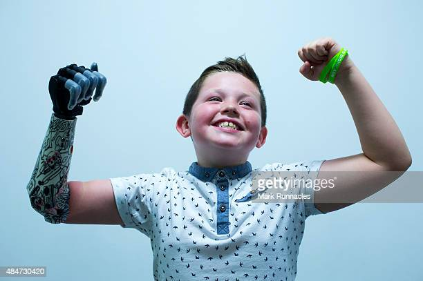 9 year old Josh Cathcart from Dalgety Bay shows his excitement during the final fitting for his new bionic hand at Touch Bionics' headquarters on...
