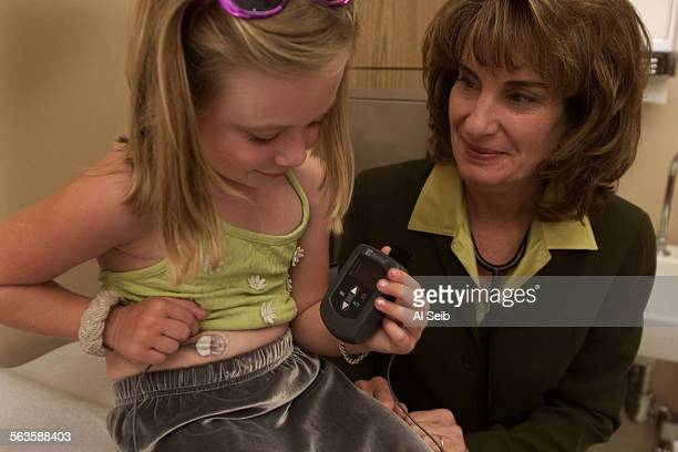 LOS ANGELES CA 5 year old Madison Hummer has Type 1 Diabetes as she shows her MiniMed continuous glucose monitoring system with Dr Francine Kaufman...