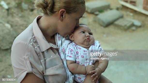 27 year old mother of four Gleyse Kelly holds her 3 month old daughter Giovanna who was born with microcephaly a condition that causes babies to be...