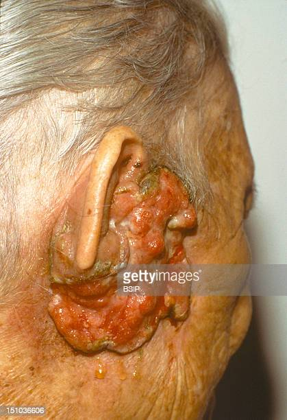 76 Year Old Patient