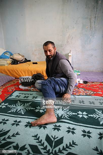 42 year old Syrian refugee Mehmet Dervis who had been held as a captive by Syrian regime about 7 month shows his wounds on his leg caused by burning...