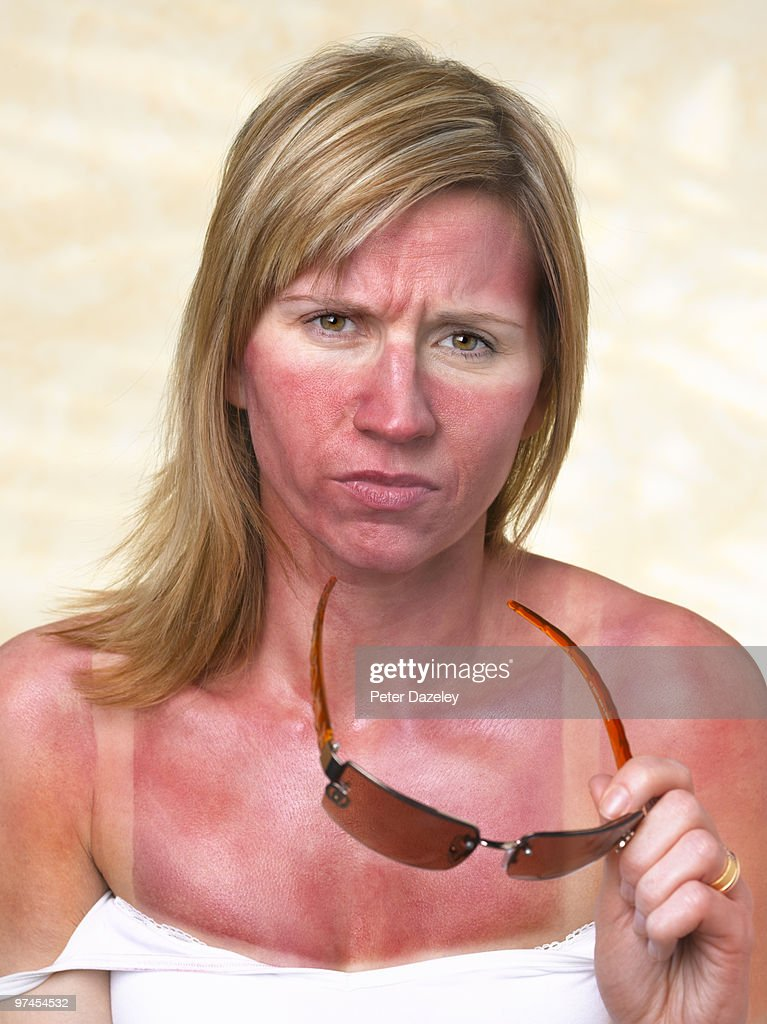 35 year old woman with sunburn : Stock Photo