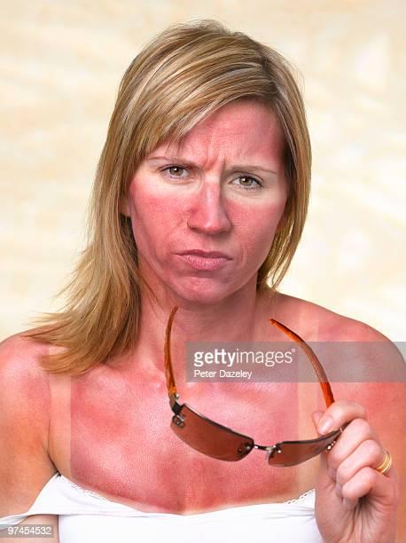 35 year old woman with sunburn - coup de soleil photos et images de collection