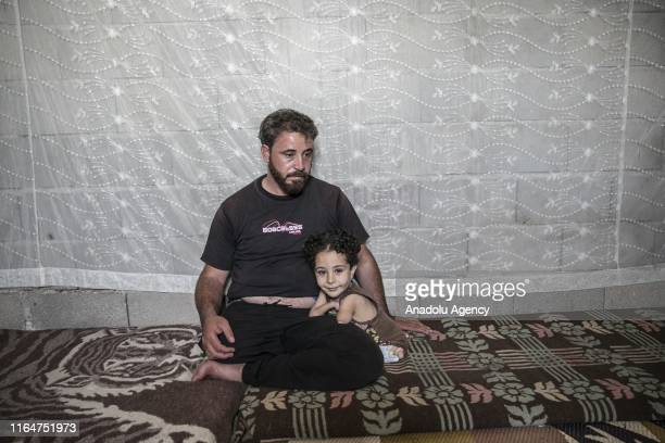 Years old congenital amputee Mustafa Nezzen poses for a photo with his father Munzir Nezzen in Hatay, Turkey on August 29, 2019. Nezzen family fled...