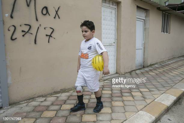 Years old Hamis al Gacir who lost his leg as a result of Assad Regime Forces bombing in Idlib, is seen with his prosthetic leg in Hatay, Turkey on...